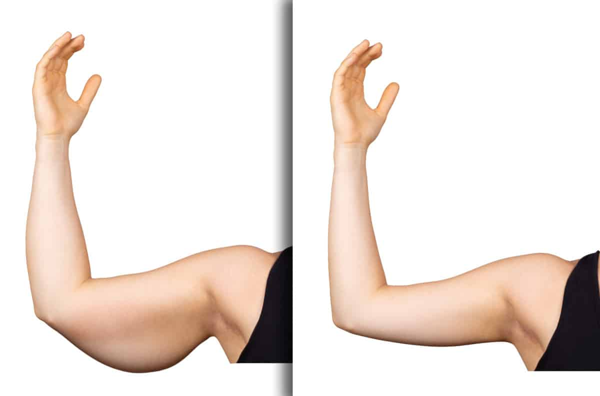 Flabby Arms & Bat Wings Before & After