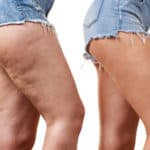 How to Get Rid of Thigh Fat Fast (In 7 Days at Home)