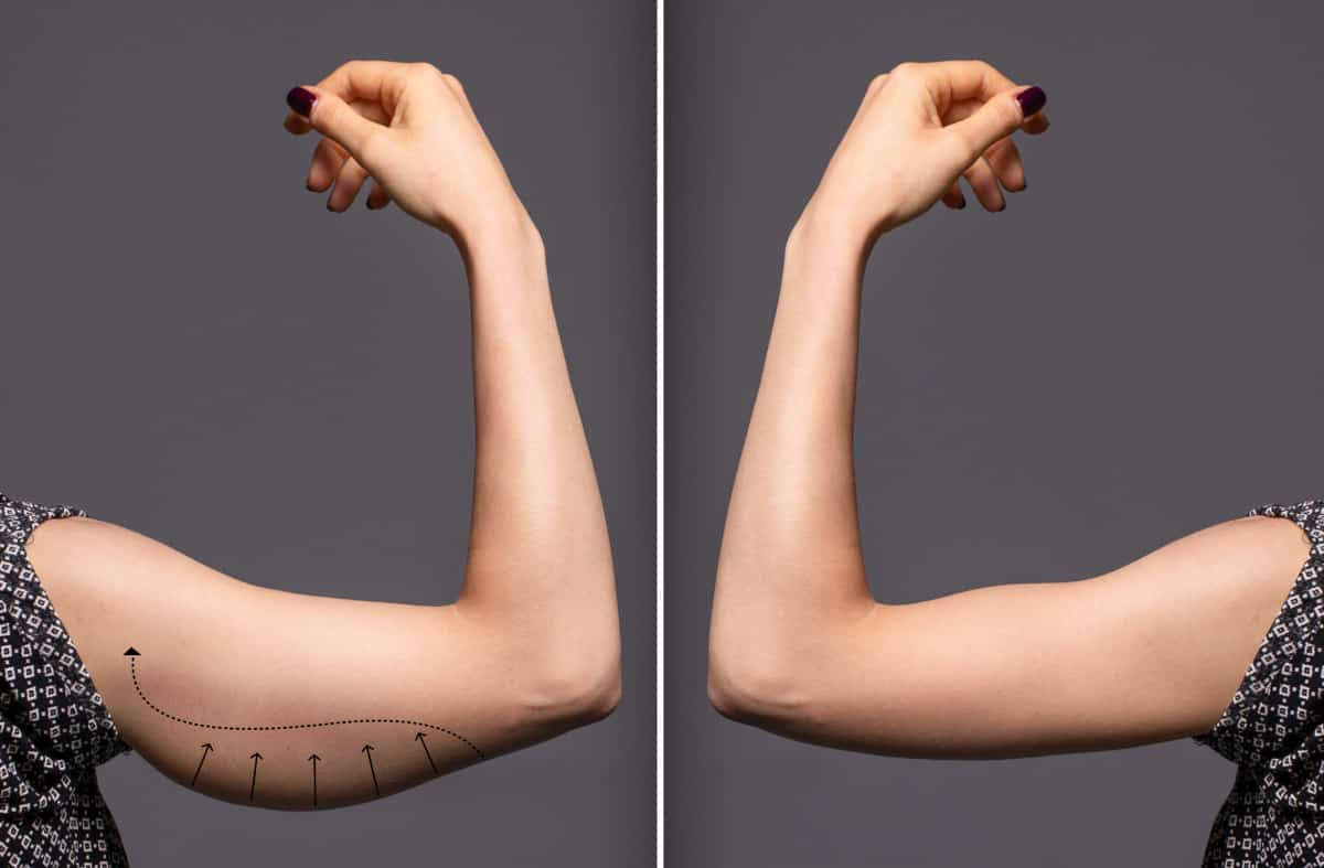 before and after flabby arms