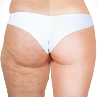 How to Get Rid of Cellulite Fast (No More Orange Peel!)