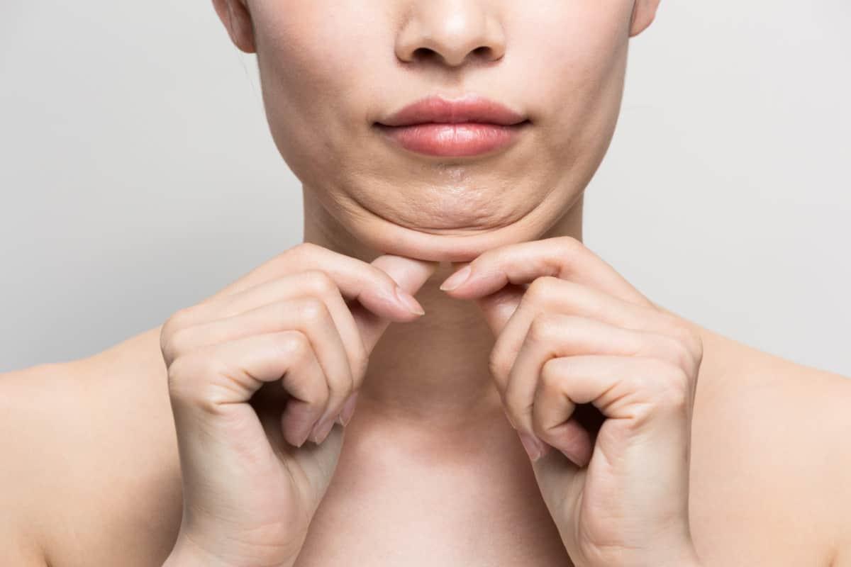 stubborn double chin fat