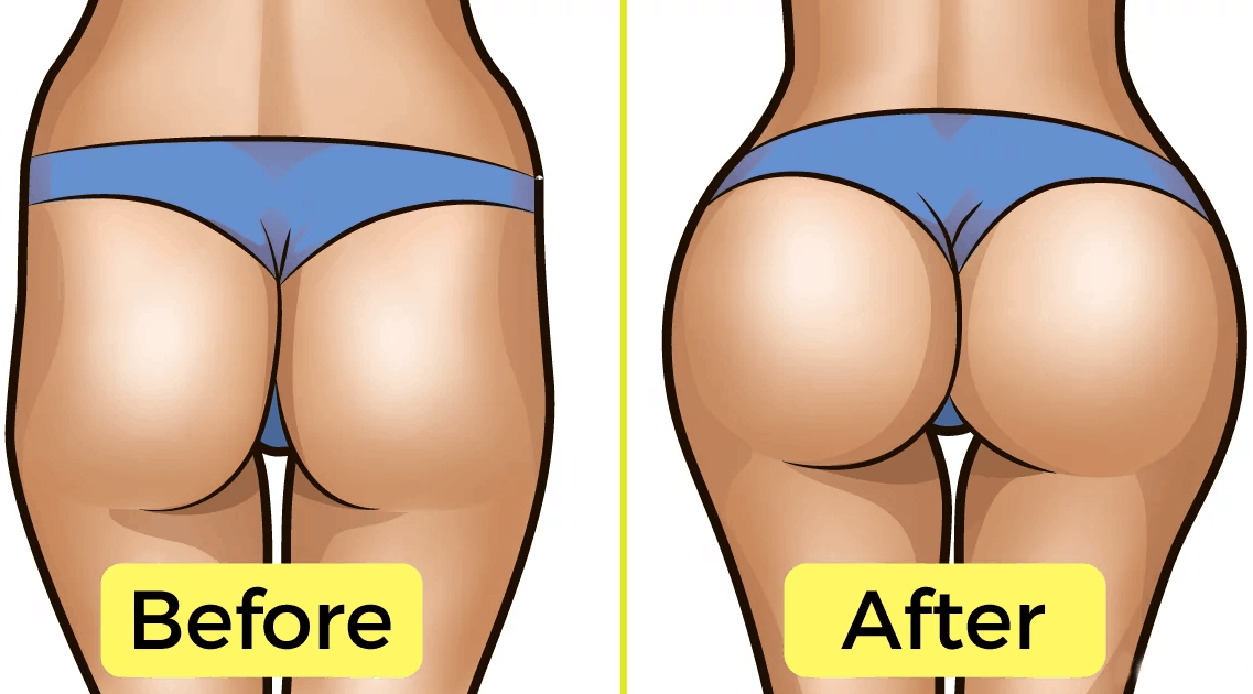 hip dip workout before and after