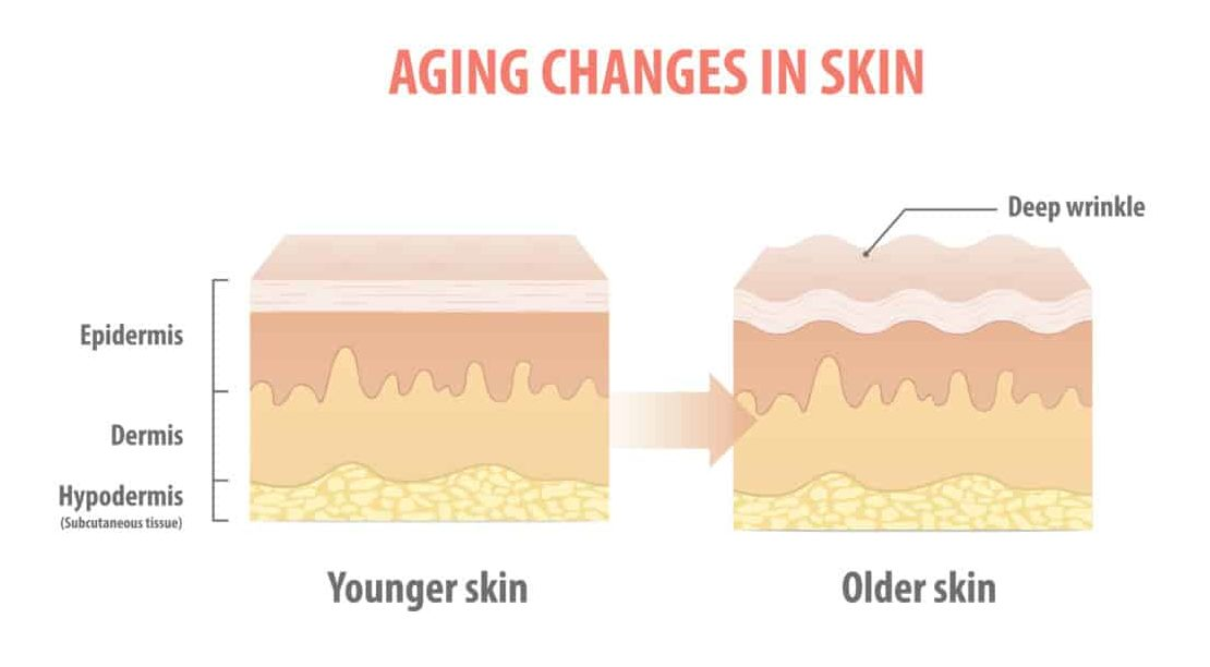 increase collagen skin aging changes