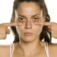 Need to Know How to Get Rid of Under Eye Bags? Do THIS
