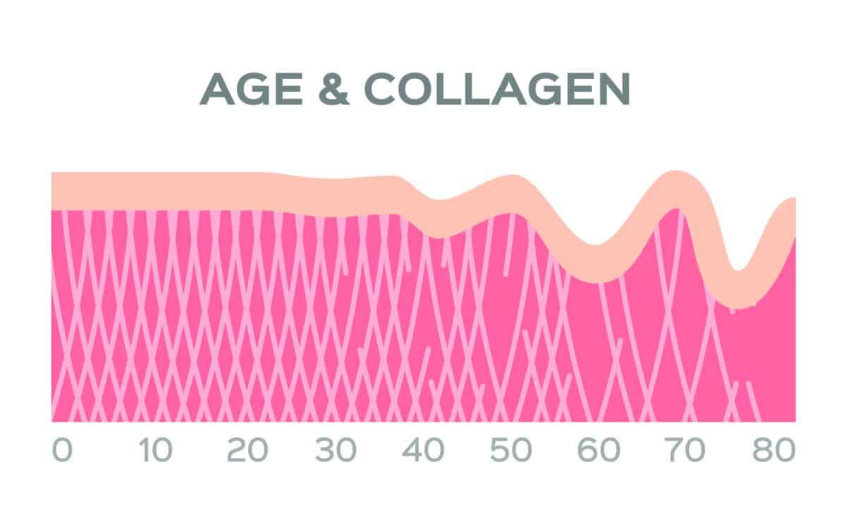 under eye bags collagen