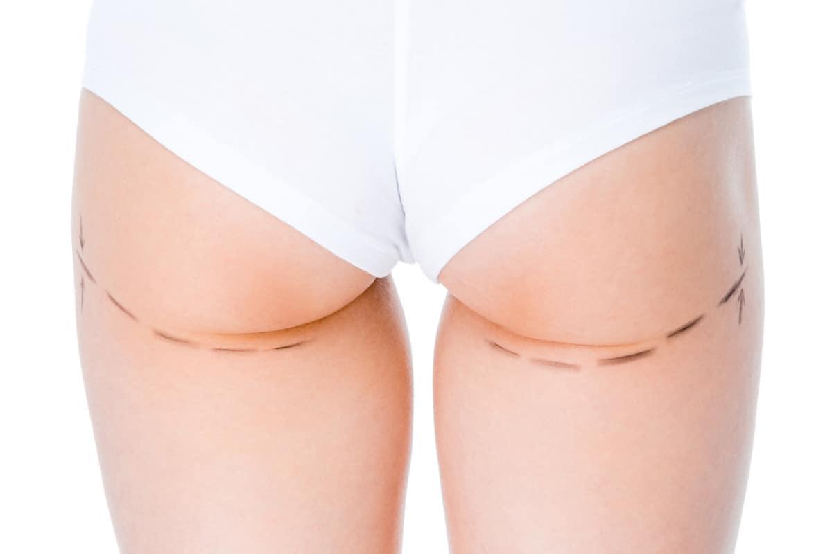 under butt fat