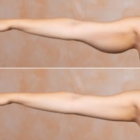 How to Get Rid of Upper Arm Fat (10 Killer Exercises)