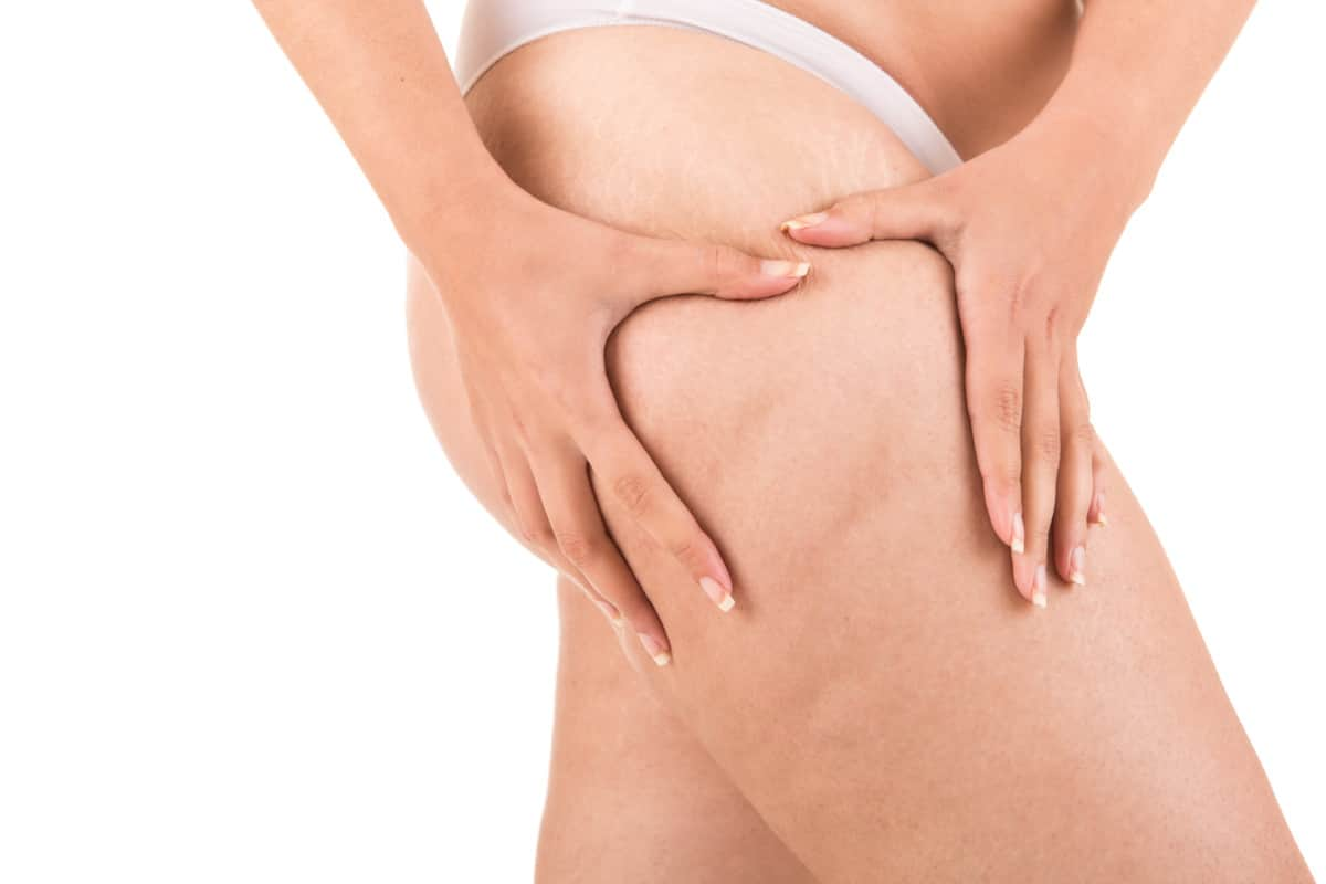 Get Rid of Cellulite on Your Buttocks Naturally