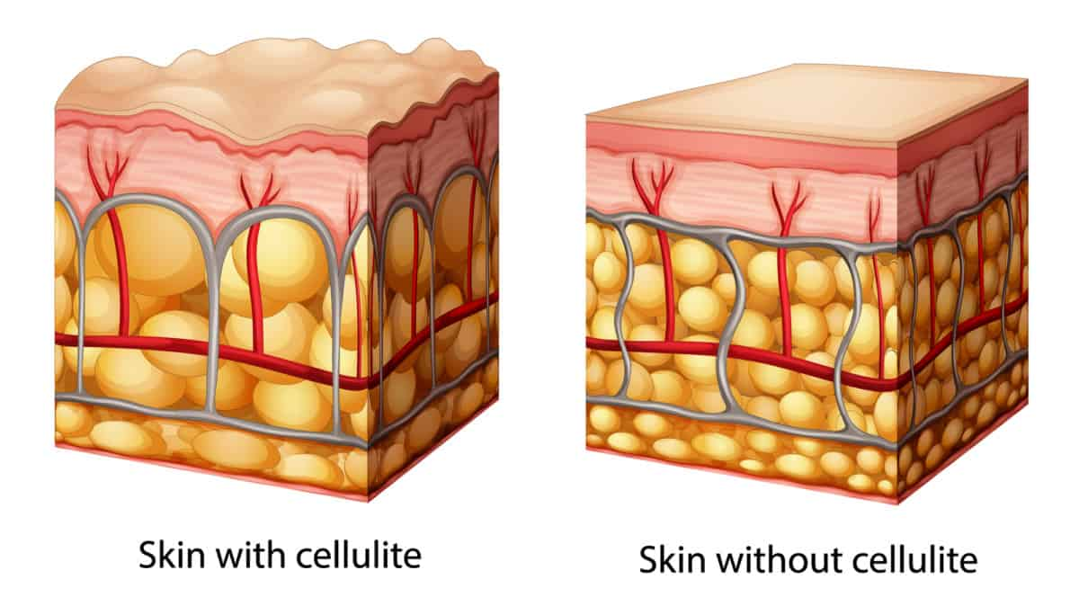 cellulite healthy vs unhealthy skin