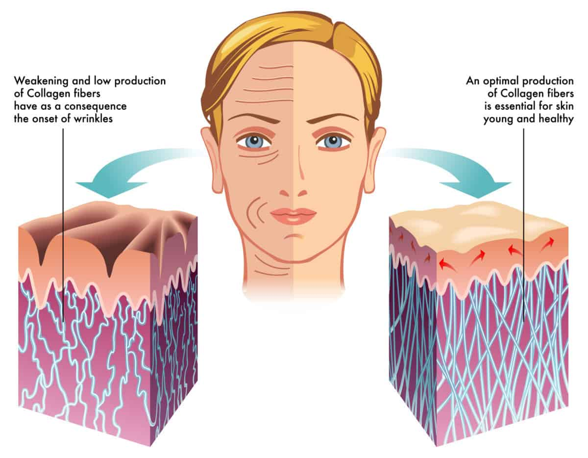 collagen old vs young skin
