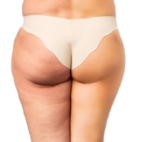 How to Get Rid of Cellulite on Your Butt (8 Best Exercises)
