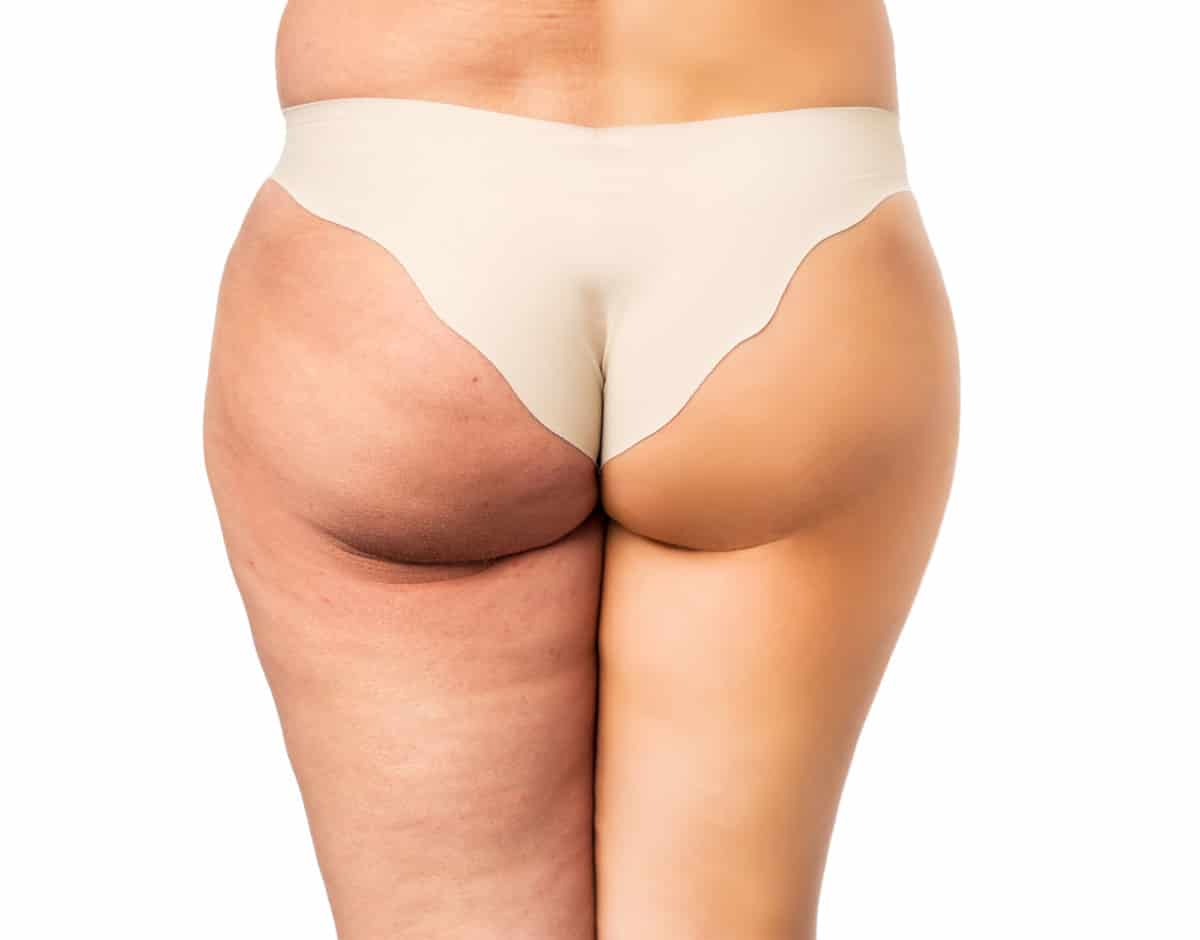 get rid of cellulite on your butt