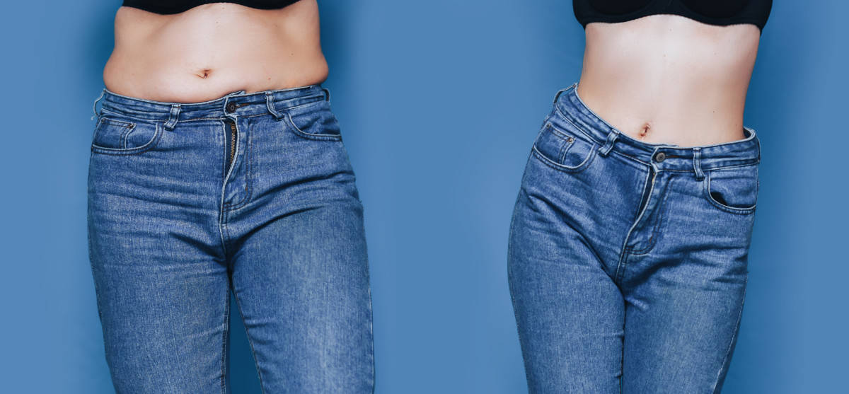 woman skinny fat before and after