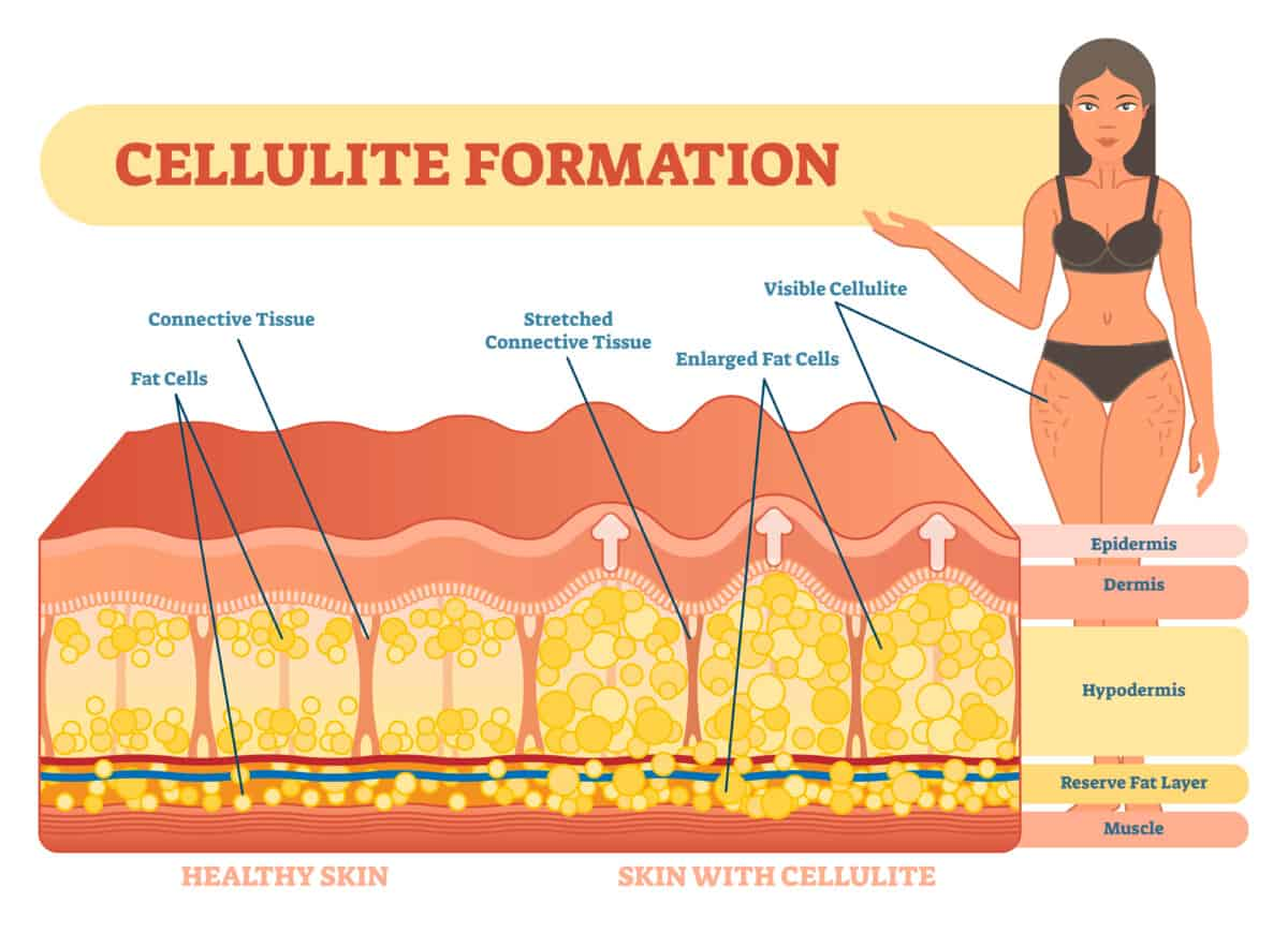 collagen formation fat pushing