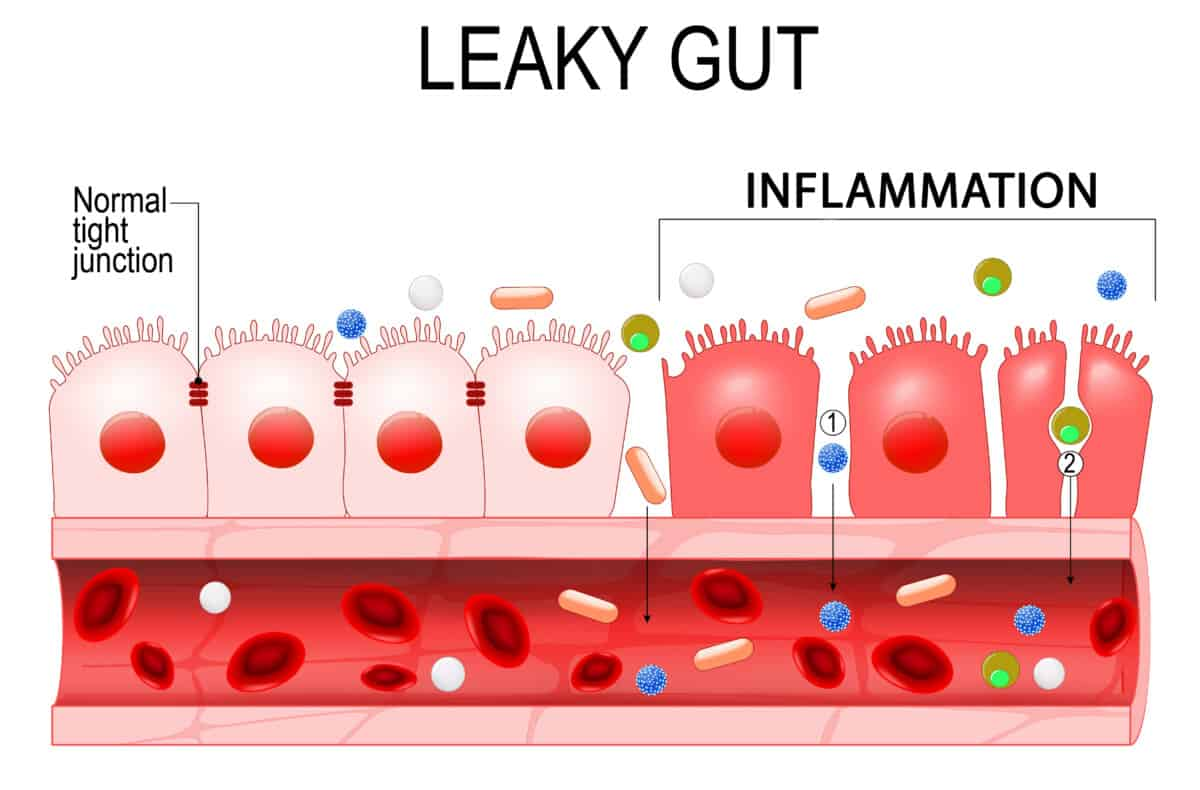 leaky gut weight gain